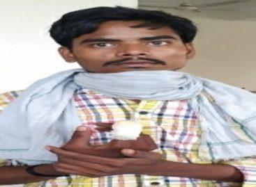 अब एआरडी इंडस्ट्रीज में कटी मजदूर की उंगली  पुलिस, नेता, डॉक्टर, लेबर कोर्ट…हर किसी ने राहुल को किया निराश